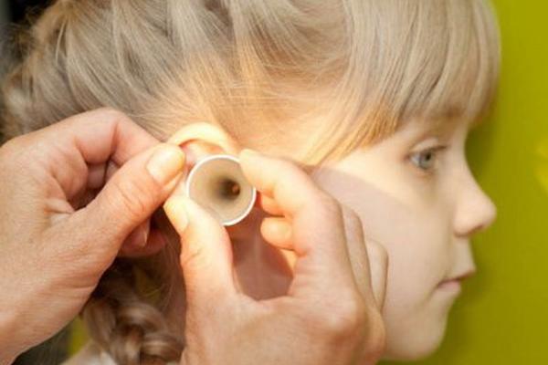 Почему в ушах у ребеночка выделяется много серы?